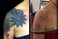 Shouilder Mandala Cover Up Tattoo Design Nice Minimal Touches Of regarding proportions 960 X 909